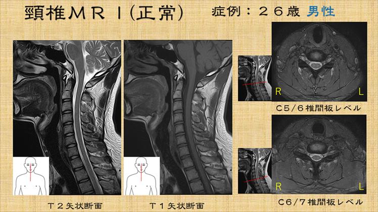 甲骨 しこり 肩 左肩肩甲骨付近の痛みについて