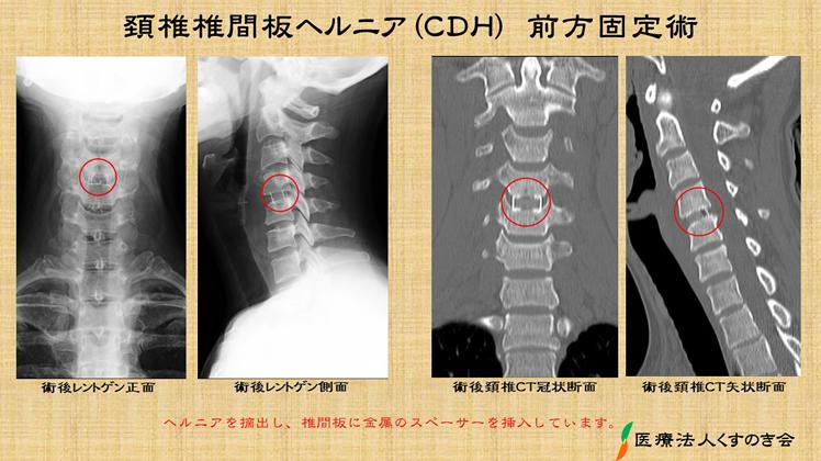 ヘルニア ストレッチ 頚椎 首のストレッチや体操後に悪化する頸椎症、頚椎ヘルニア、神経痛